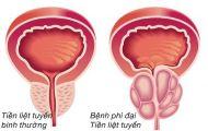Phì đại tiền liệt tuyến và phương pháp chữa bệnh bằng đông trùng hạ thảo